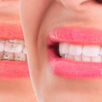 Aparelho dentário branco