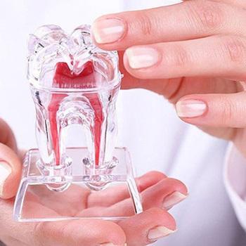 Canal aberto dente