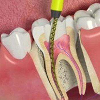 Canal de um dente
