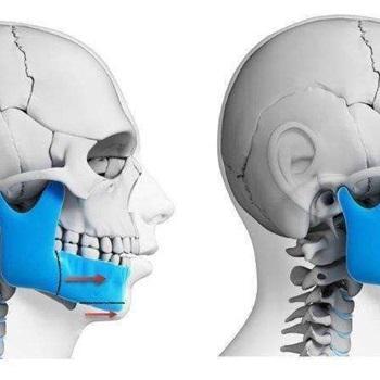 Cirurgia bucomaxilofacial preço