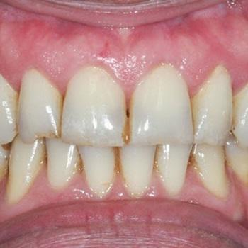 Como tirar nicotina dos dentes