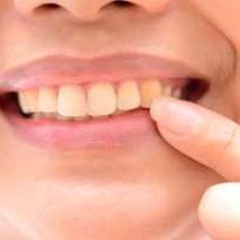 Como tirar o amarelo dos dentes