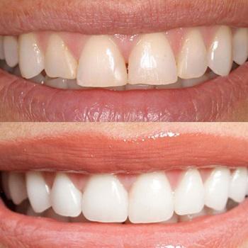 Implante dentário de porcelana