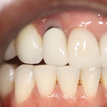Manchas escuras nos dentes como tirar