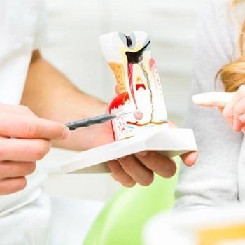 Preço de canal dentário