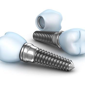 Preço de implante