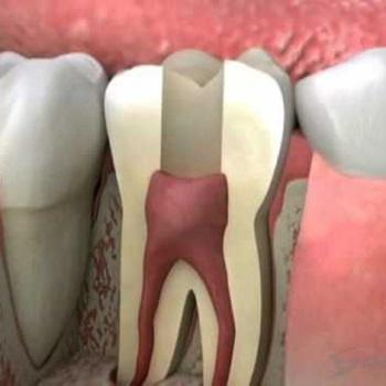 Sensibilidade no dente com canal