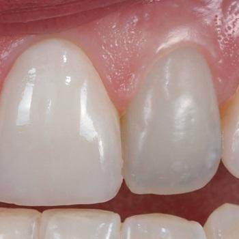 Tratamento de canal dente da frente