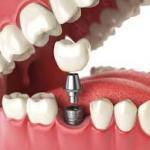Prótese dentaria