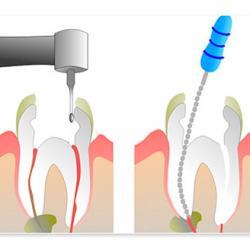 canal dental