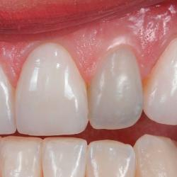 canal dentário inflamado
