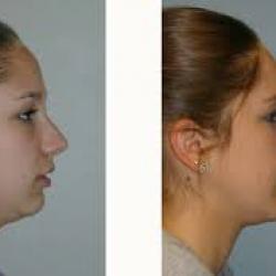 cirurgia ortognática avanço de mandíbula