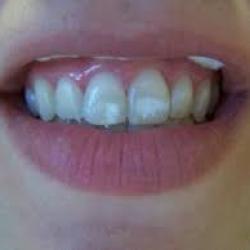 dente com mancha branca tratamento