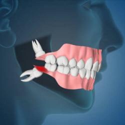 Dente do siso inflamado