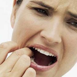 dente do siso recuperação