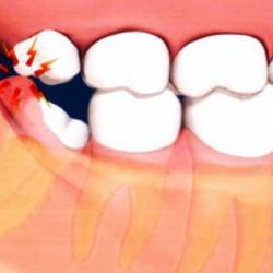 dor no dente do siso
