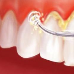 limpeza de tártaro nos dentes