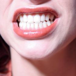 Mancha preta no dente perto da gengiva