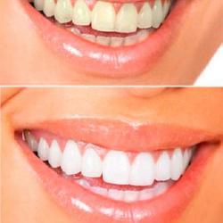 mancha verde no dente