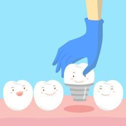 Qual o preço de implante de dente