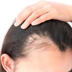 Tipos mais buscados de tratamento para cabelo